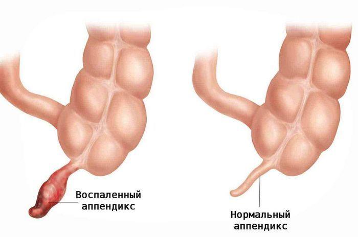 10 Бесполезных органов человека
