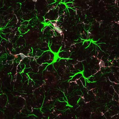 Белок болезни хантингтона нужен для правильного развития мозга