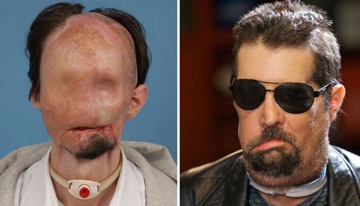 Что может и что не может сделать трансплантация лица