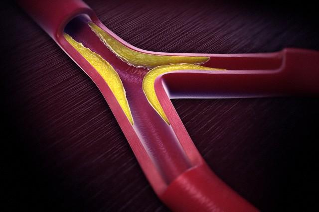 Для инфаркта миокарда нашли ещё один ген