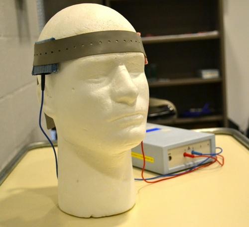 Электростимуляция мозга помогает справиться с инсультом