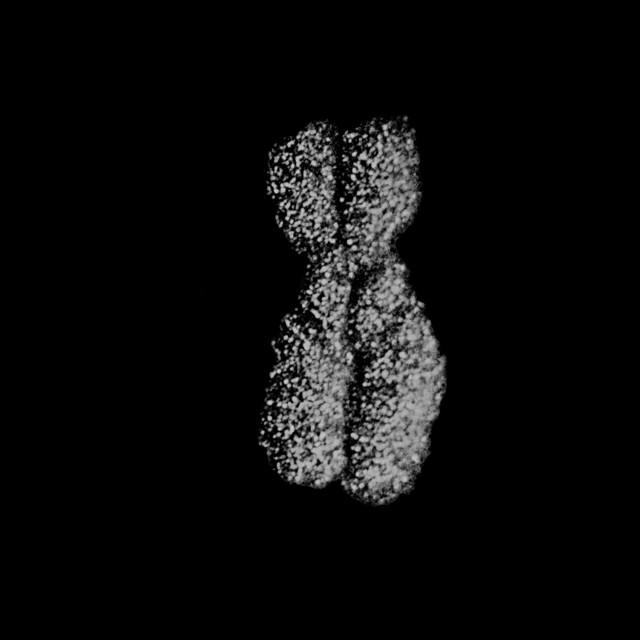 Как молчит х-хромосома