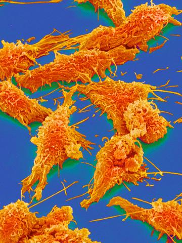 Как связаны воспаление и рак