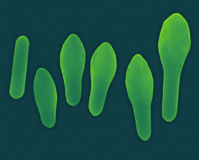 Кишечные бактерии защищают от пищевой аллергии