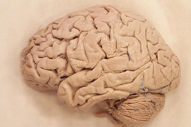Может ли кора мозга менять свои функции?