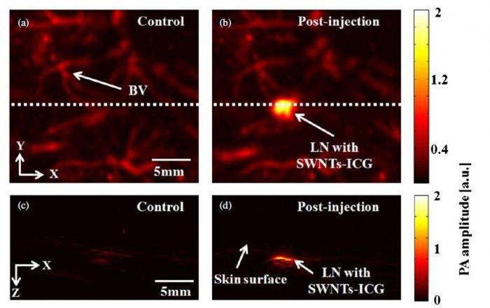 Нанотрубки позволяют улучшить инструменты фотоакустического отображения
