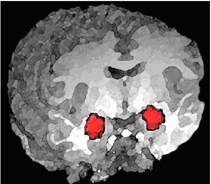 Нейроны соревнуются за память