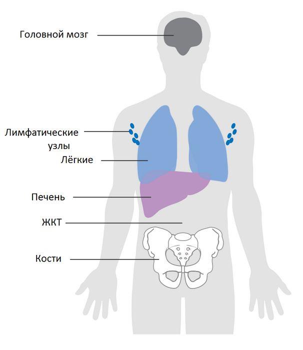 Обнаружены две новые мутации, вызывающие меланому