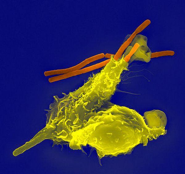 Описан общий молекулярный механизм возникновения аутоиммунных ошибок