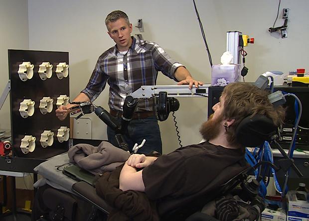 Парализованный американец обрел осязание в искусственной руке