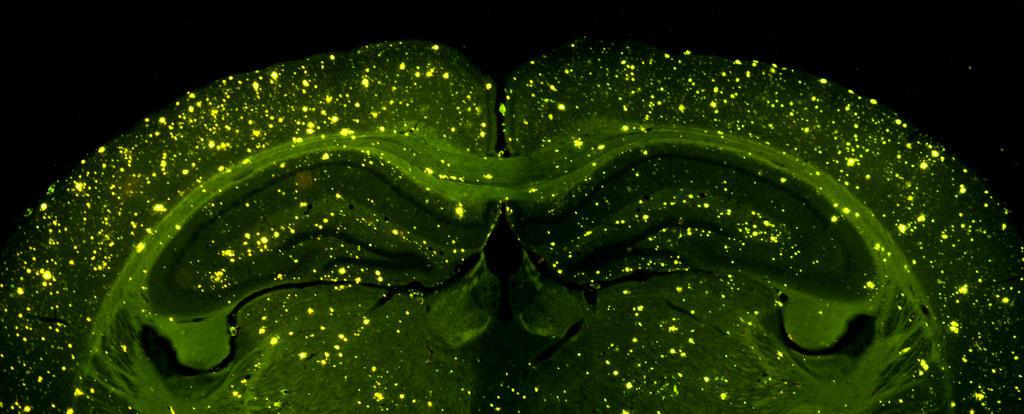 Синдром альцгеймера начинается с цинка