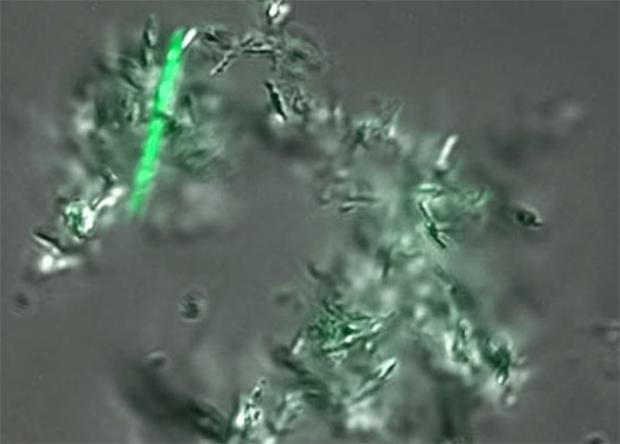 Создан высокочувствительный экспресс-анализ на туберкулез