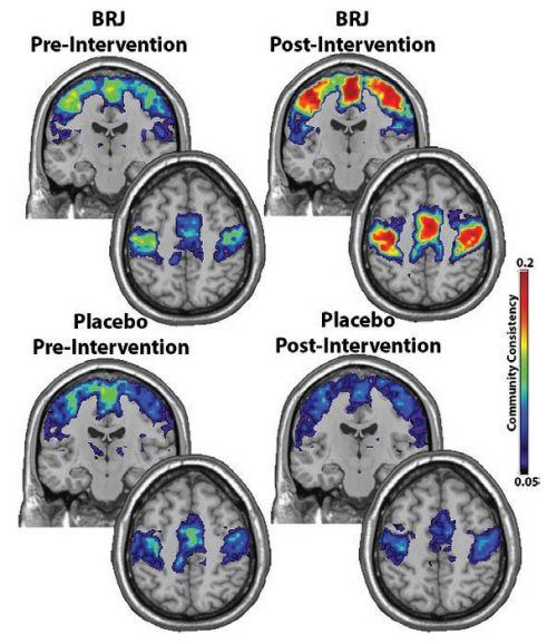Свекольный сок и зарядка вернули подвижность мозгу