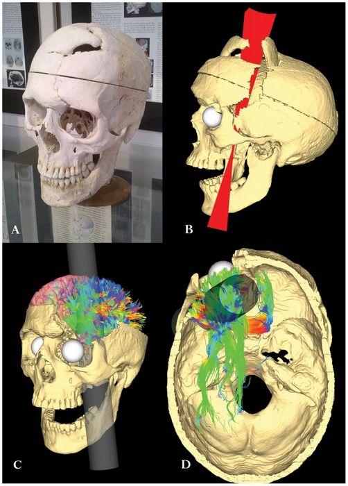 Ученые: лобная доля головного мозга отвечает за религию
