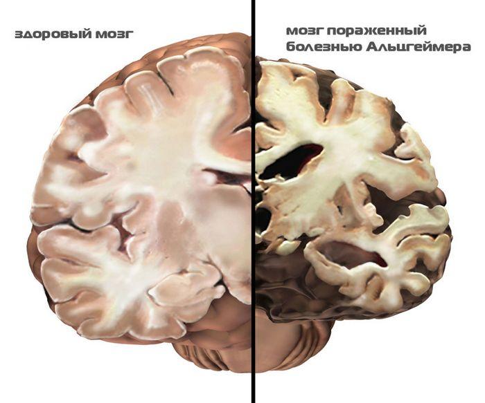 Ученым удалось восстановить интеллект 10 пациентов с болезнью альцгеймера