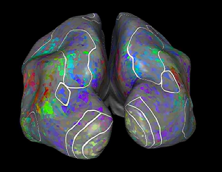 В мозге нашли место для слов