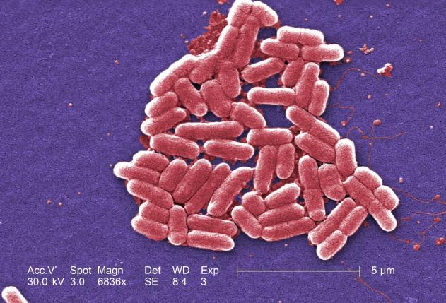 В сша обнаружен первый случай заражения бактерией, устойчивой к антибиотику «последнего резерва»